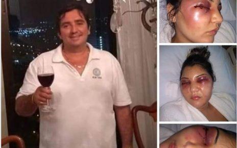 fabio felipe procurado espancou e torturou sua esposa radargeral.com