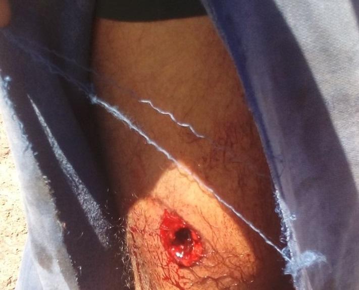 tiro no joelho bruno sooretama menor radargeral